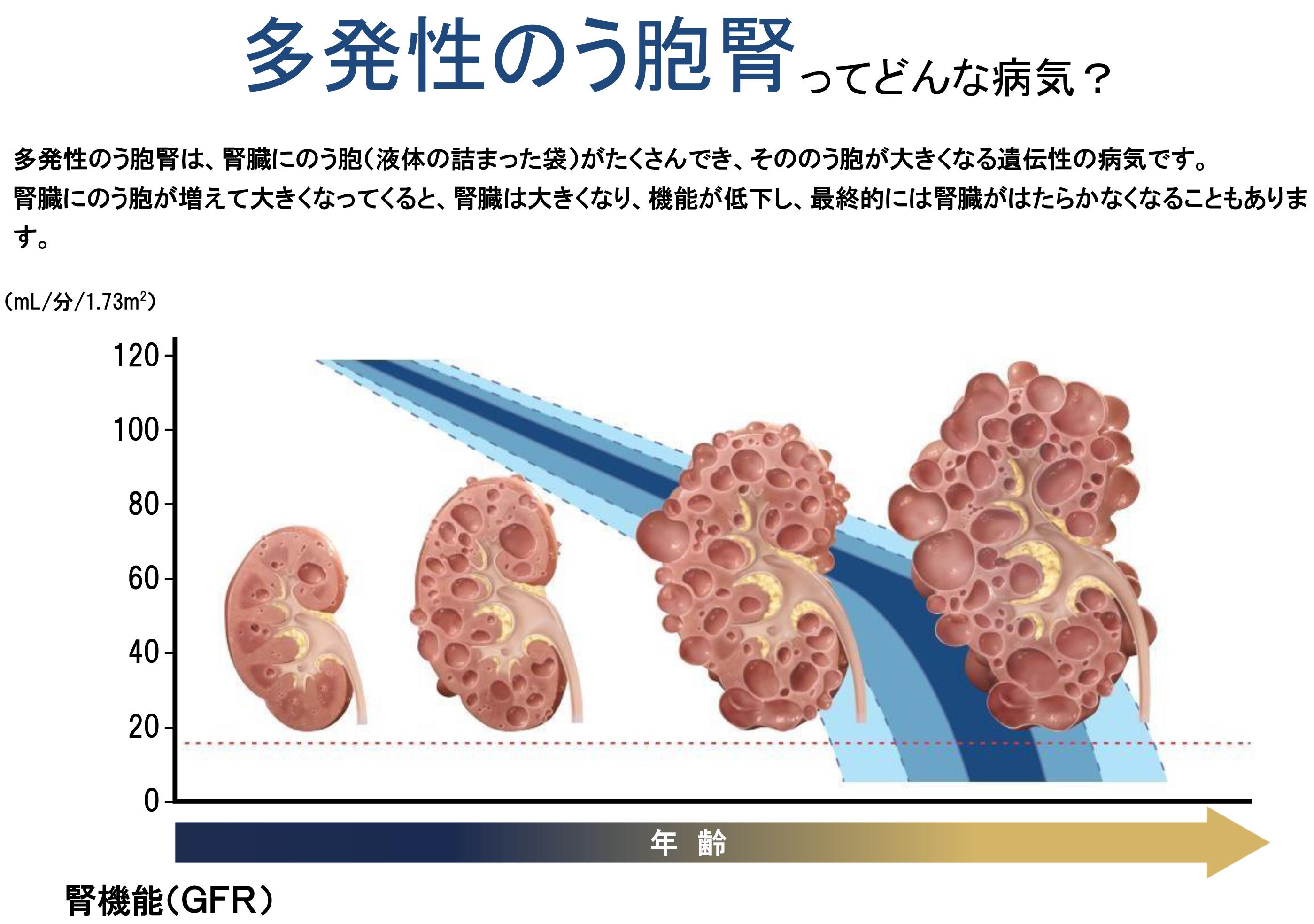 多発性嚢胞腎について
